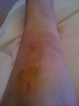 Towcester, UK: Badly bruised