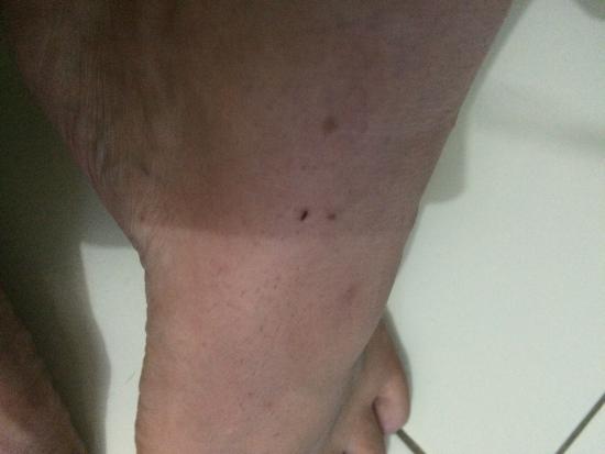 سيكريت جاردن إن: Fleas in our room , all 4 people left with feet that were covered in bites