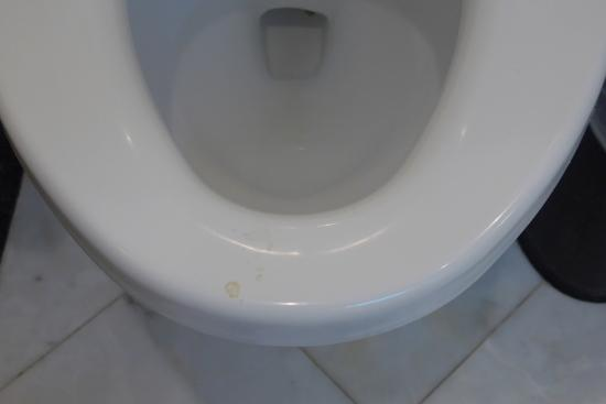 how to clean toilet seat stains