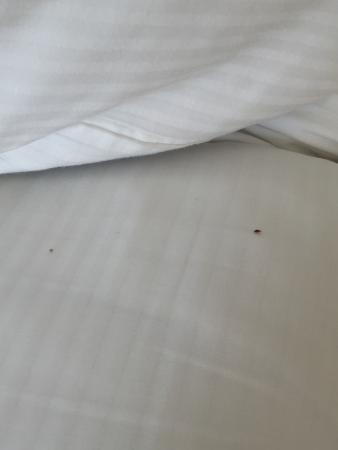 Live bed bug on hilton sheets picture of hilton daytona for Bed bugs on sheets
