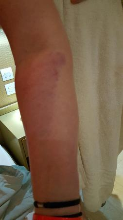 Pantheon Hotel: Bruised arm after a dangerous leak in room!!!!