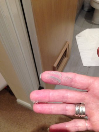 Kennford, UK: bathroom dust, this is someone's skin