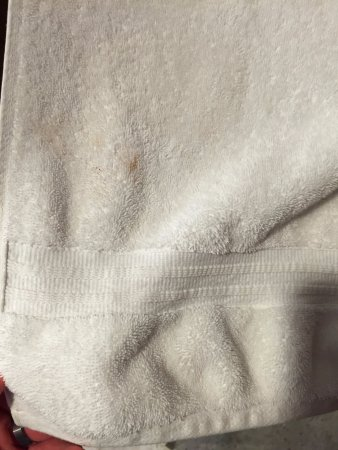 Hutton Hotel: Stains and holes in the bath towel