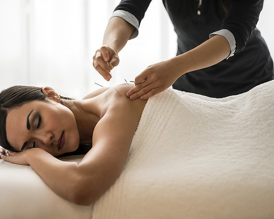 Four Seasons Resort and Club Dallas at Las Colinas: Acupuncture