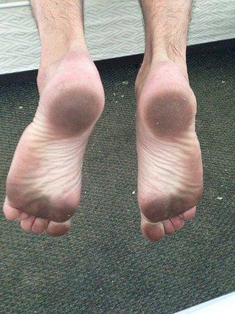 The Seascape Inn: My feet from dirty carpet.