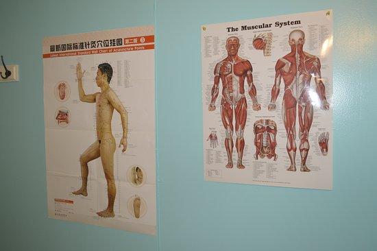 Brookfield, CT: meridian chart & muscular chart