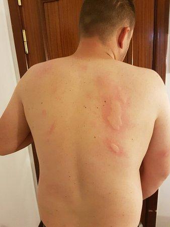 August 2016 Bedbugs Picture Of 4dreams Hotel Puerto De La Cruz