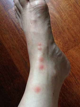 lymph node swelling on my left foot - Picture of Comfort Hotel ...
