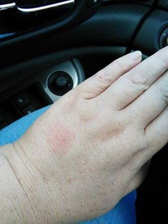 Super 8 Pittsburgh Airport/Coraopolis Area: Bug bite, which has swelled and itched all day. Was not there yesterday.