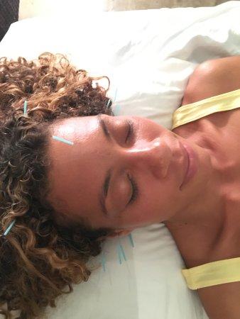 Kilauea, Χαβάη: Kauai Facial Acupuncture