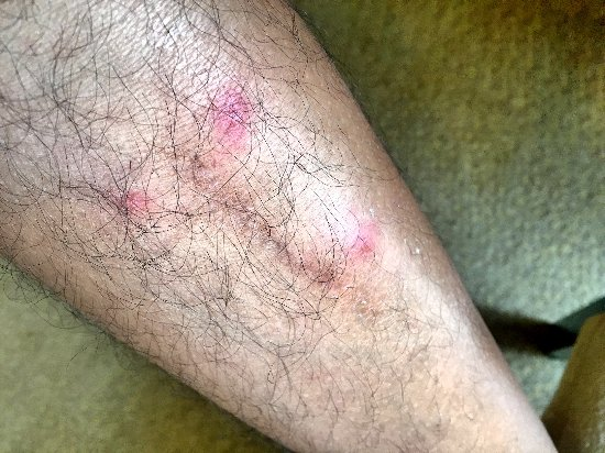 Holiday Villa Beach Resort & Spa Cherating: Bed bug bites