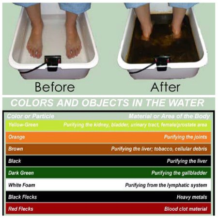 Nanaimo, Canada: Ion Cleanse Detox Foot Bath