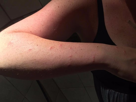 Super 8 Corvallis: bed bug bites