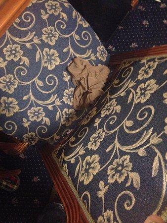 Hotel Oasi Wellness & Spa: calza indesiderata