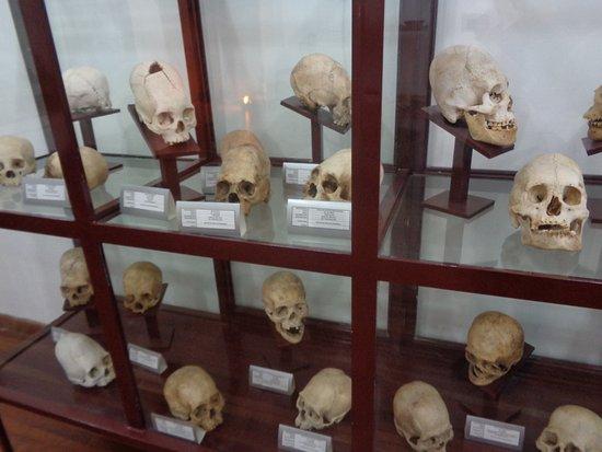 Museo Charcas (University Museum Colonial & Anthropological): Cranos con deformaciones y trepanaciones