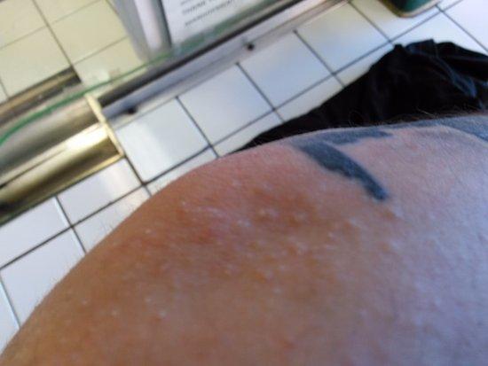 Amber Inn: More bug bites