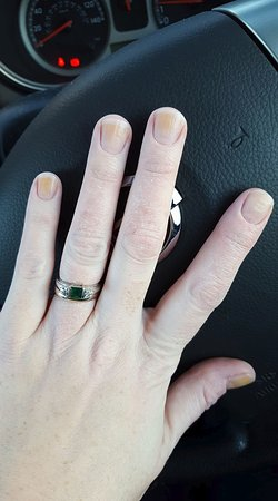 Nether Poppleton, UK: my nails after two days of having nail polish (not even that dark a colour) following manicure.