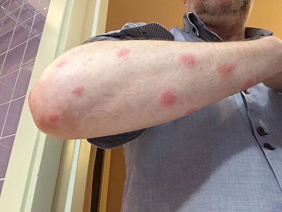 Hotel Minerva: Bed Bugs From Room 37