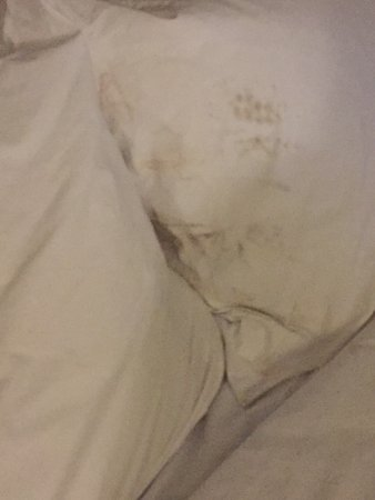 Embassy Suites by Hilton Fort Lauderdale 17th Street: Dirty Pillows on the Beds! Disgusting!