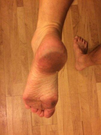 Studio 6 Jacksonville - Baymeadows: Feet after walking around 30 minutes
