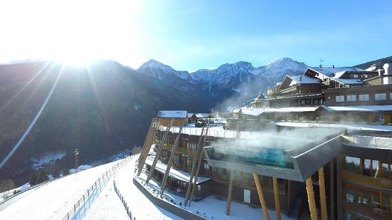 Photo of Alpin Panorama Hotel Hubertus Sorafurcia