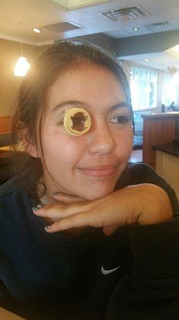 Camarillo, CA: Cone eye aka RA
