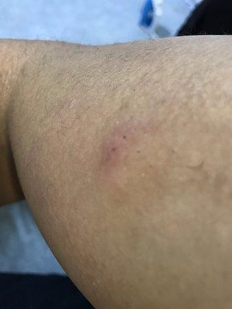 Hotel Neutraal: bug bites