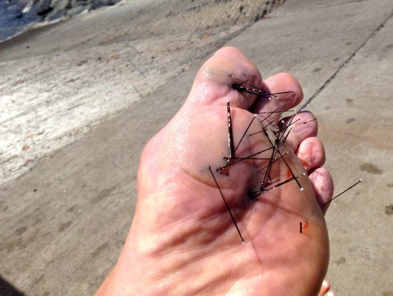 Pahoa, HI: I stepped on an urchin and got impaled. Safe swimming close in but don't step down.