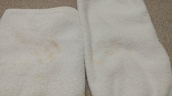 Park Town Hotel: Blood stained towels