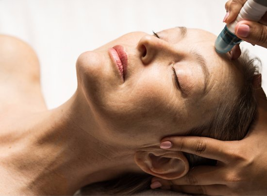 Bromont, Canada: Microdermabrasion