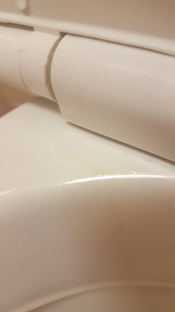 Toorak, Australia: Toilet rim with pooh stain
