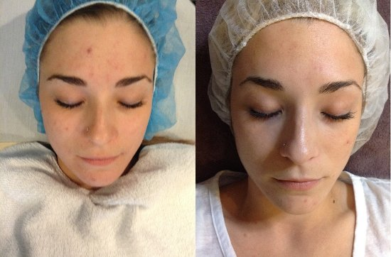 Campbell, CA: Before and After DermaSweep treatments