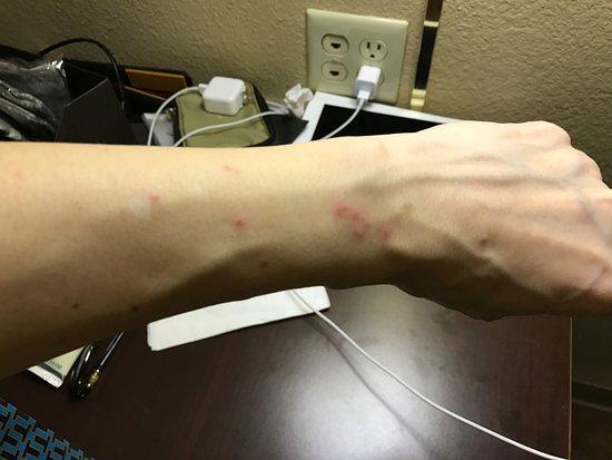 Chino, Kalifornia: 被咬的痕跡