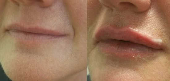 Gassville, AR: Offering Lip filler, at Simply Beautiful Medical Spa!