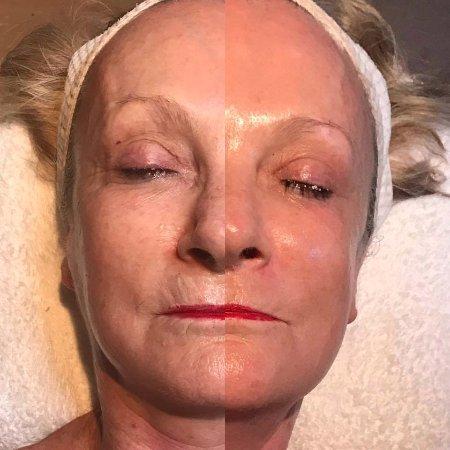 Ettalong Beach, Australia: After 1 treatment, Dianne had the Medi Facial with Therapist Leanne B