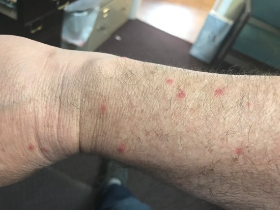 Grand Sirenis Matlali Hills Resort & Spa: Bed Bug Bites