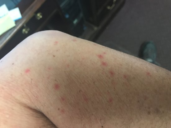 Grand Sirenis Matlali Hills Resort & Spa: More Bed Bug Bites