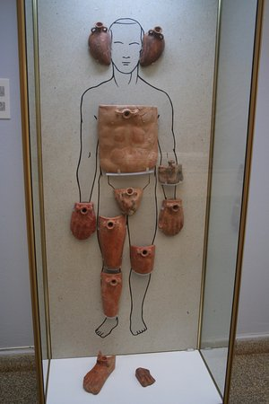 Paphos District Museum: Medical hot water bottles dating to the end of the Hellenistic period, C1st bce.