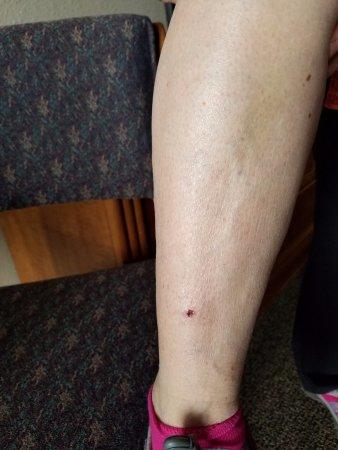 Polynesian Water Park Resort: bed frame cut my leg