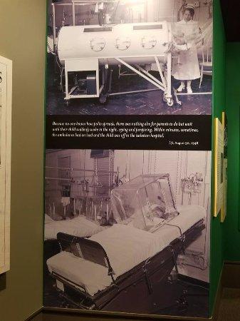 Greensboro, Carolina do Norte: Learn about the polio epidemic