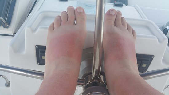 Road Town, Tortola: what happens with sandals without sunscreen