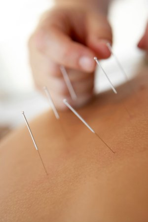 Baleal, Portugal: Acupuncture and TCM