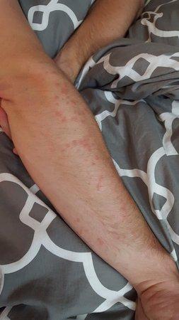 Yosemite Inn: My arm a few days later