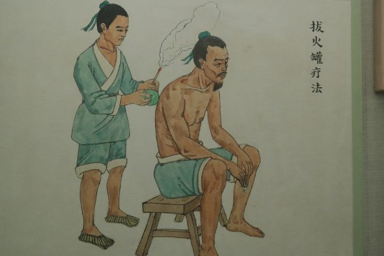Beijing Traditional Chinese Medicines Museum of Beijing College of Traditional Chinese Medicine: aplicacion de ventosas