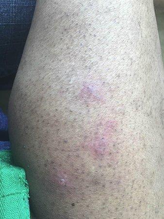 Whitehall, PA: Bug bites