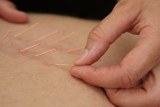 Bowness-on-Windermere, UK: Dry needling