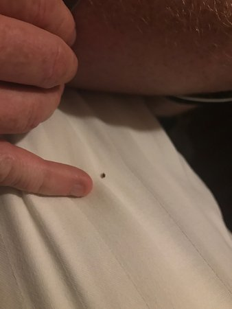 Cedar Lodge: Bed bugs