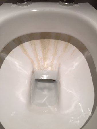 La Tour-de-Salvagny, Prancis: Calcified scum on the toilet bowl