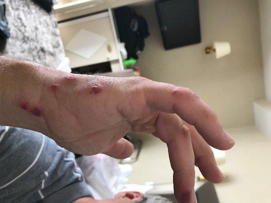 Morrow, GA: Insect bites