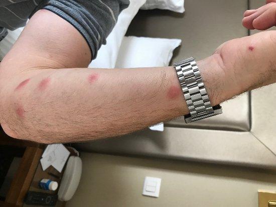 Morrow, Τζόρτζια: insect bites